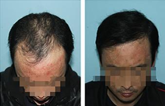 脱发的原因及治疗
