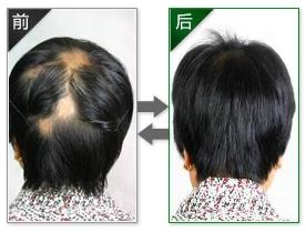 广州治疗脱发的哪个医院好